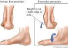 Плоско-вальгусная деформация стопы