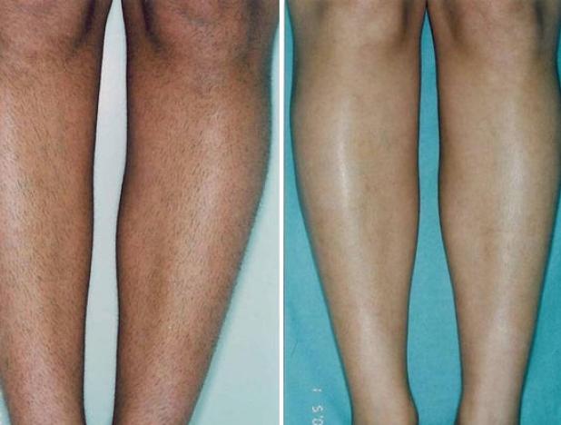 Преимущества лазерной эпиляции ног