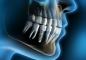 Имплантация зуба - просто и быстро